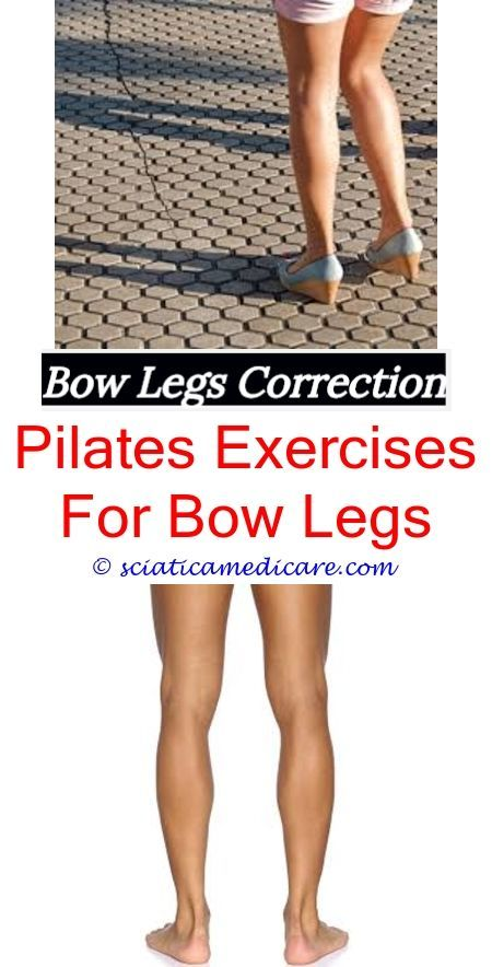 How To Correct Bow Legs At Home Bow Legged Correction Bow Legged Knock Knees