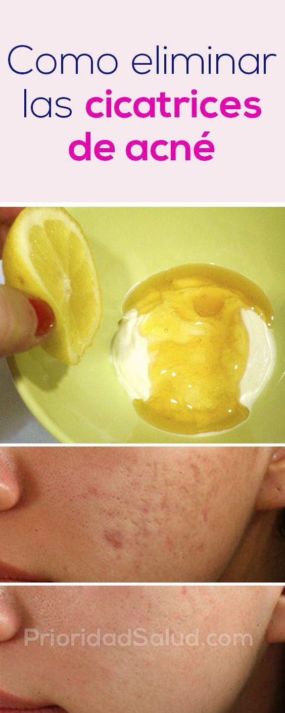 como eliminar las cicatrices de las espinillas en la cara
