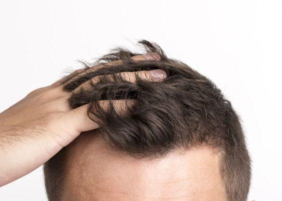 El Minoxidil es un medicamento que se emplea para la estimulación del crecimiento capilar y frenar la caída del pelo, usado con una concentración del 5 % en hombres y del 2 % en mujeres. Al aplicar el Minoxidil de forma tópica sobre el cuero cabelludo, se ejerce una acción vasodilatadora en los capilares, o lo que es lo mismo, se ensanchan, ayudando al aumento del flujo sanguíneo en los folículos pilosos. Así, al estar la raíz del cabello mejor alimentada facilita su crecimiento.