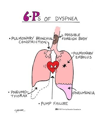 The 6 P's of Dyspnea: Pump failure, Pneumonia, Pneumothorax, Pulmonary embolism, Pulmonary bronchial constriction, & Possible foreign body. Mnemonics for Nursing Assessment of the Respiratory System.:
