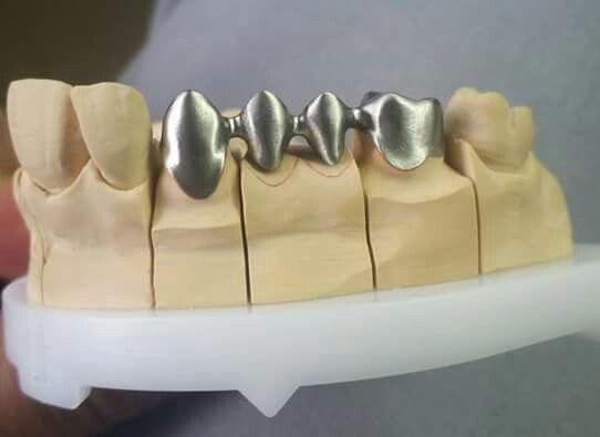 Pin De Jean Pierre Valdivia Rosales En çalışmaörneklerimetalaltyapıörneğibydrbigboss Protesis Dental Fija Tecnico Dental Laboratorio Dental