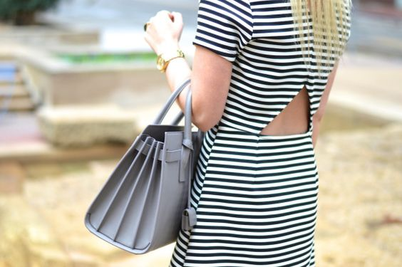 top shop striped dress