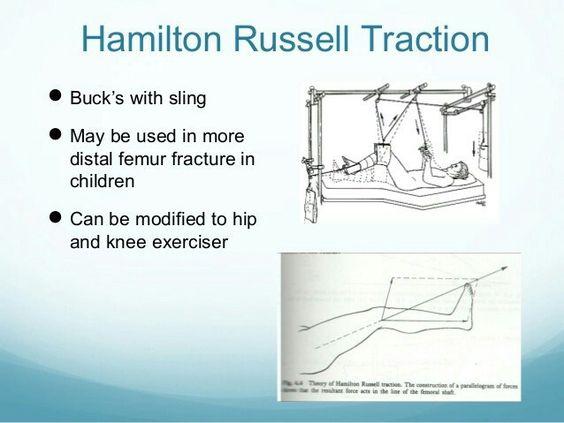 Hamilton russell traction