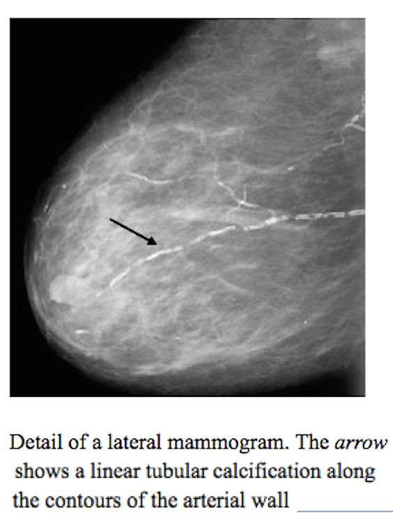 Digital Mammograms performed to check the health of the breasts could also give clues to the health of the heart, researchers say. That's because the amount of calcium in the arteries of the breast, which can be seen on a digital mammogram, seems to reflect the amount of calcium in the coronary arteries, which supply blood to the heart. Calcium in the coronary arteries is known to be an early sign of heart disease.