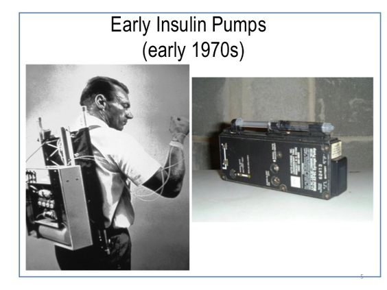 Image result for picture of first insulin pump