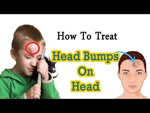 How To Treat Swelling On The Head From An Injury || Home