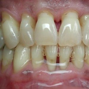Dental Bone Loss Causes | Dental Care | Pinterest | Bone loss ...
