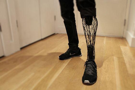 Exo Prosthetic Leg - La protesi del futuro. Attraverso la combinazione di scanner 3D, di una stampante 3D e di un software di modellazione 3D, si può creare una protesi estremamente resistente, leggera e biocompatibile.