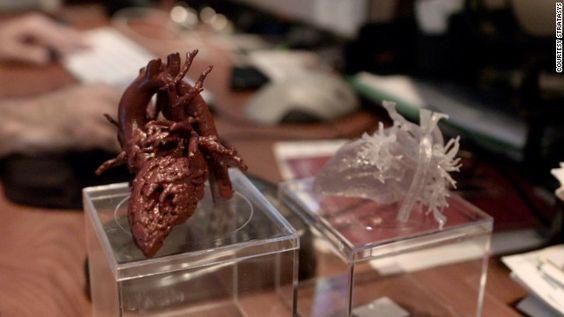 Cómo un corazón impreso en 3D le cambió la vida a una niña | CNNEspañol.com