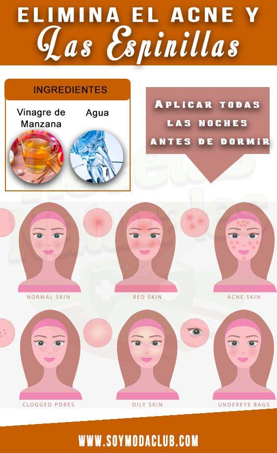 Sinewi Gallo Miseria  Elimina el acné y las espinillas con vinagre - Soy moda | Acne, Tips,  Everyday food