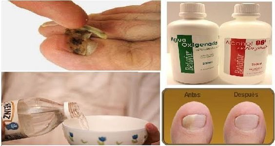 "They Call It ""The Fungus Fighter""! Remove All Nail Fungus With This Magical…"
