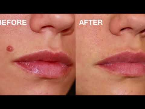 How To Remove Moles On Face At Home Diy 5 Home Remedies For Mole Removal By Desi Beauty Tv Youtube Moles On Face Mole Removal Laser Mole Removal