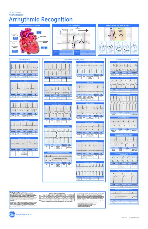 Cardiac Dysrhythmia  Scope Of Work Template  Nursing