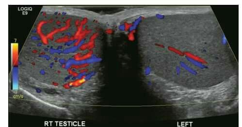 25++ Transient osteoporosis and avascular necrosis ideas