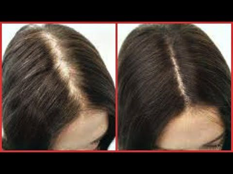 How To Regrow Hair On Bald Spot Edges Thinning Hair Fast Hair Growth Khichi Beauty Youtube In 2020 Hairstyles For Thin Hair Regrow Hair Hair Growth Faster