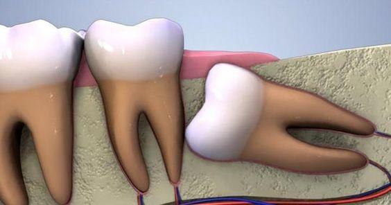 L'escroquerie des dents de sagesse et pourquoi vous avez besoin de vos dents de sagesse