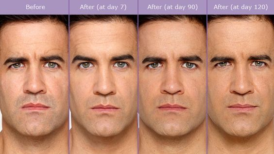 http://justmelt.com/botox-dysport-nyc-fillers-doctor