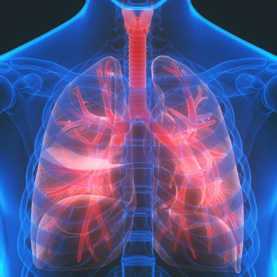 Interstitial Lung Disease + 5 Natural Remedies by @draxe