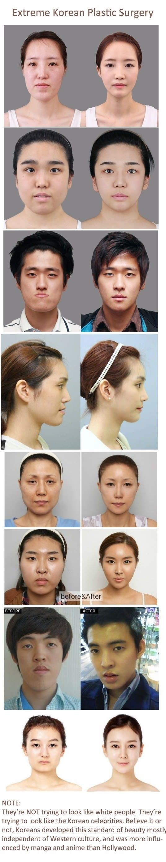 Korean plastic surgery before after crazy plastic surgery pinterest korean plastic surgery plastic surgery and cosmetics