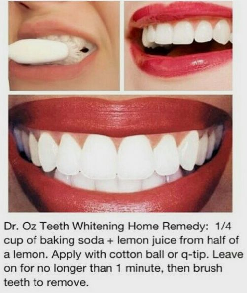 Pin On Baking Soda Teeth