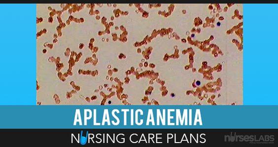 4 Anemia Nursing Care Plans Aplastic anemia, Nursing care plan - care plan