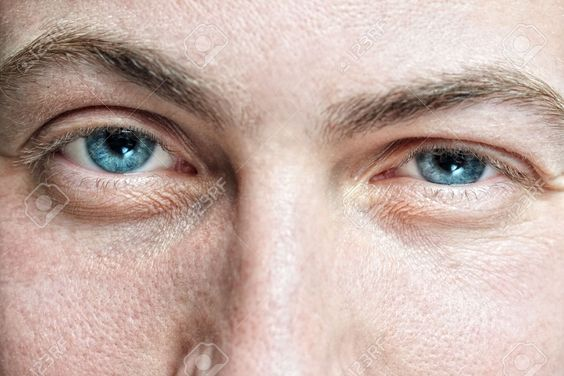 6713184-Closeup-of-young-man-s-blue-eyes-with-problematic-skin-Stock-Photo.jpg (1300×867)