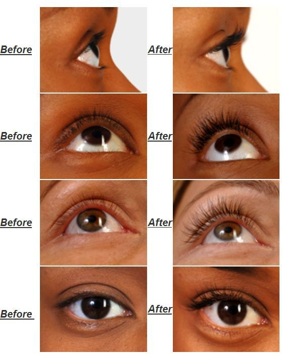 eyelash extensions before and after | Before and After treatment: