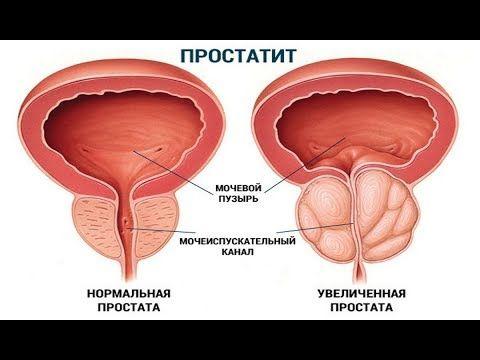 Mejram Prostatit Kak Vylechitsya Navsegda Youtube Rak Predstatelnoj Zhelezy Lnyanoe Maslo Puzyri
