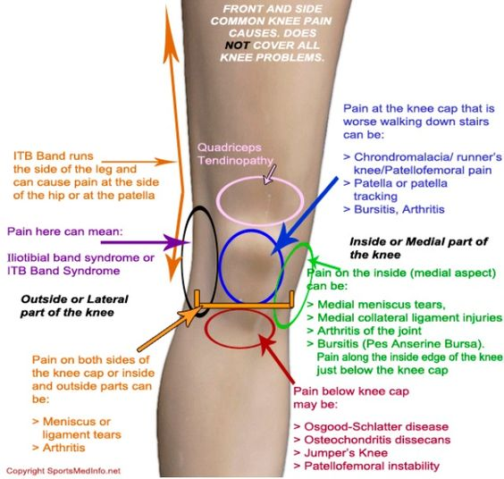 Some common knee pain causes. Some cheery news on your pain -_- it's probably an injury, not soreness