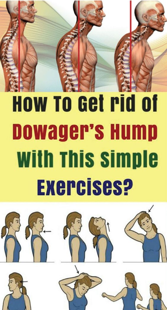 To avoid kyphosis, or a hunchback or dowagers hump, first and foremost make sure that you are getting..
