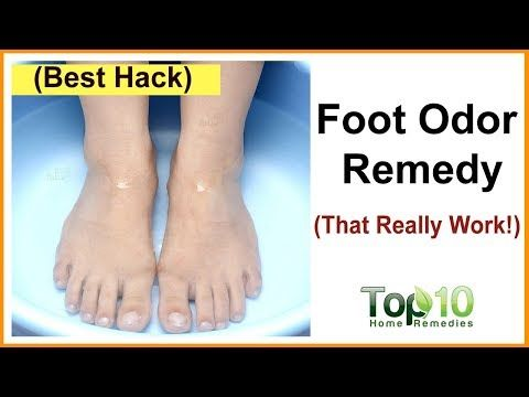 Do You Shy Away From Taking Off Your Socks And Shoes When You Are Around Other People Or Is The Smell Emana Stinky Feet Remedy Foot Remedies Foot Odor Remedies