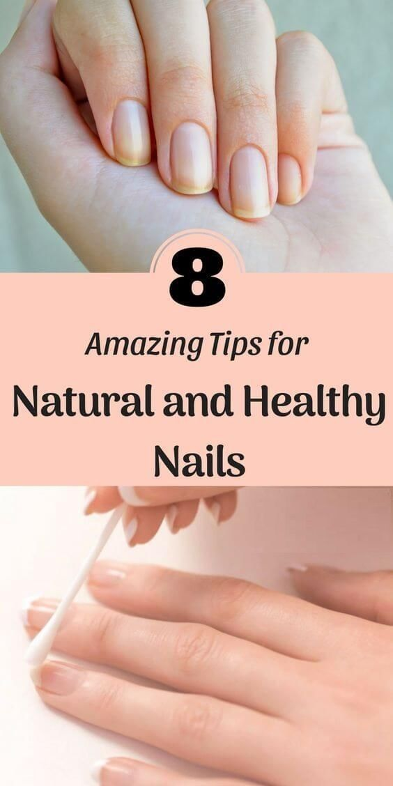 8 Amazing Tips For Natural And Healthy Nails Beautytipsteens Healthy Nails Healthy Nails Natural Natural Nail Care
