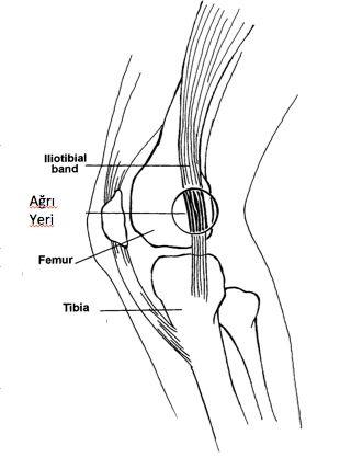 İliotibial Band Sendromu - Ortopedi ve Travmatoloji Uzmanı | Kalça Protezi Ameliyatı | Diz Protezi Ameliyatı | Uzman Ortopedi Doktoru | Ortopedi Uzmanı | Prof. Dr. Şeref AKTAŞ