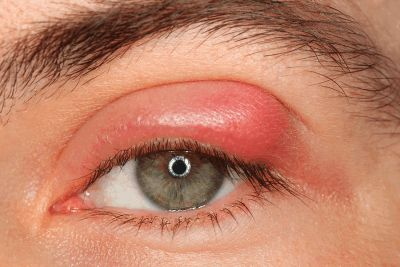 #Blepharitis #Causes, #Symptoms, #Diagnosis, And #Treatment