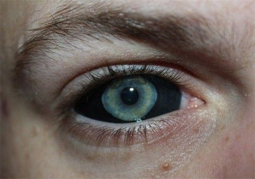 """sixpenceee: """" Scleral tattooing is when someone gets a tattoo on the whites of thier eyes. The procedures are generally painless because there aren't nerve endings in the surface of the eye, but the..."""