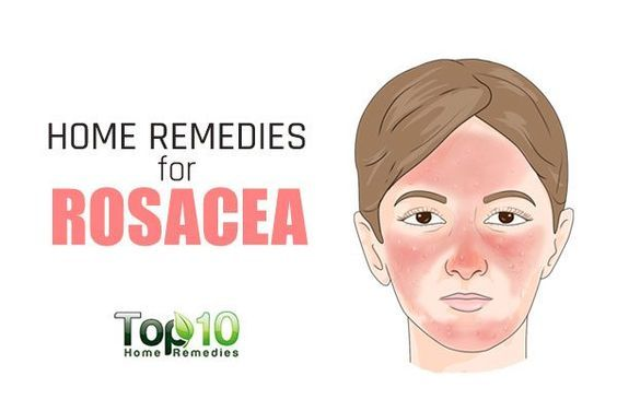 Home Remedies For Rosacea What You Should Use Top 10 Home Remedies Home Remedies For Rosacea Rosacea Skin Care Rosacea Diet