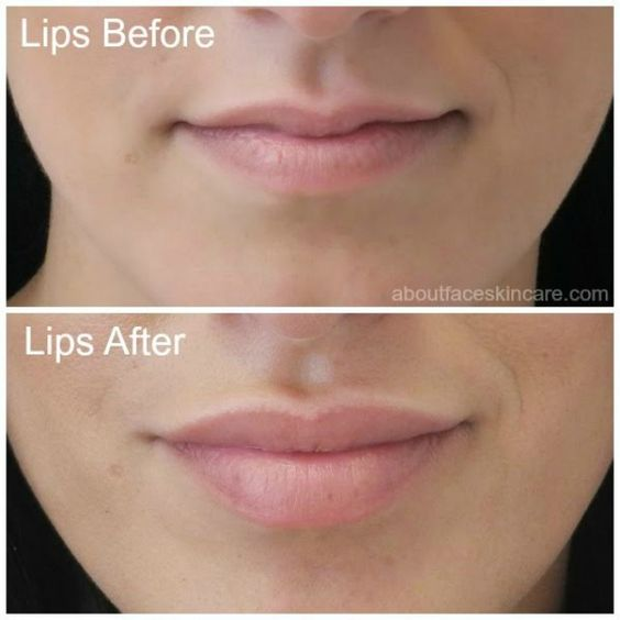 An amazing lip injection result using Juvederm! Lips are fuller, poutier, and more symmetrical! #kyliejennerlips #beauty #injections