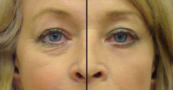 Falten Um Die Augen Mit Diesem Einfachen Mittel Sagst Du Ihnen Den Kampf An Gesund Leben Under Eye Wrinkles Wrinkles Homemade Wrinkle Cream