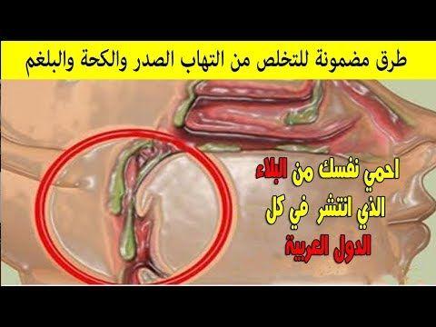أفضل الطرق الطبيعية لتنظيف الصدر وطرد الكحة وإذابة البلغم وداعا لالتهابات الصدر والرشح واللوزتين Youtube Toux Poumon