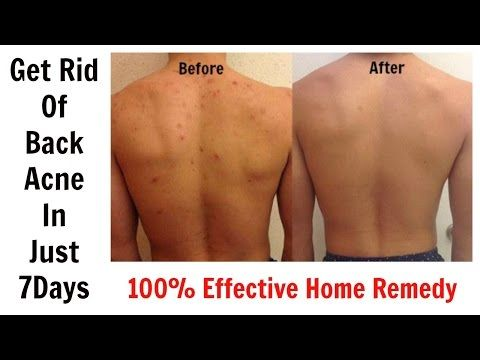 a835735373aa4a801079209cbdf66b75 - How To Get Rid Of Back Acne Scars Home Remedies