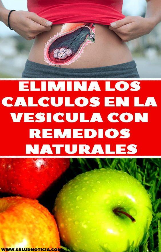 Elimina Los Calculos En La Vesicula Con Remedios Naturales Health Nature