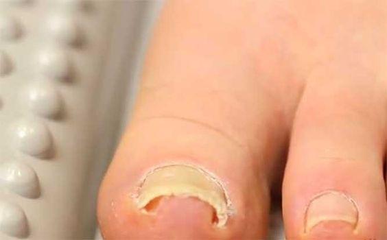Tens de conhecer esta fantástica técnica para desencravar unhas, dispensando aquelas dores habituais e fortes, dos métodos já conhecidos! Pode dar jeito a muita gente, pois há bastante gente a sofre deste incómodo problema.