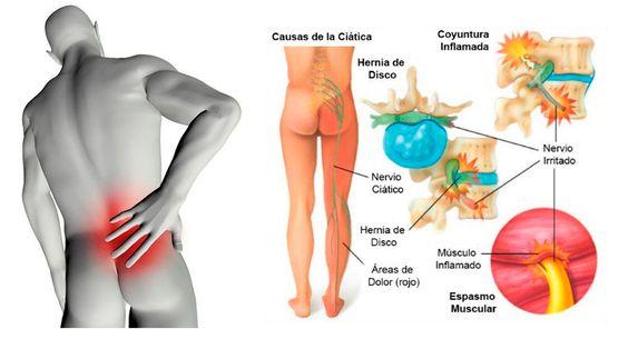 Ciatica y Remedios Caseros