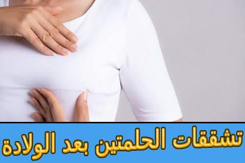 تشققات الحلمتين بعد الولادة أسبابها وعلاجها Holding Hands Hands