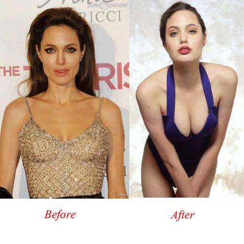 Angelina Jolie P...E Breast Implants Before And After