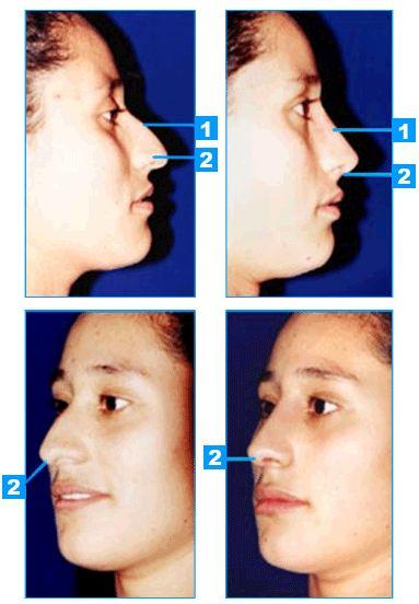 Operacion de nariz
