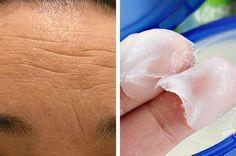 Cremas naturales para atenuar las arrugas de la frente ~ Vive Por Más Tiempo