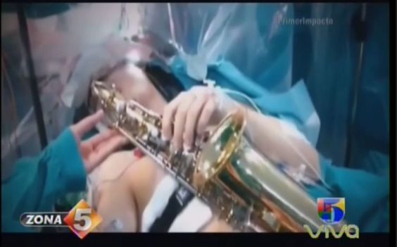 Músico Toca Su Saxofón Mientras Es Operado De Tumor Cerebral
