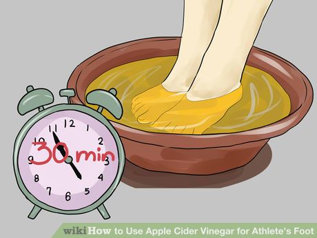 Image titled Use Apple Cider Vinegar for Athlete's Foot Step 5