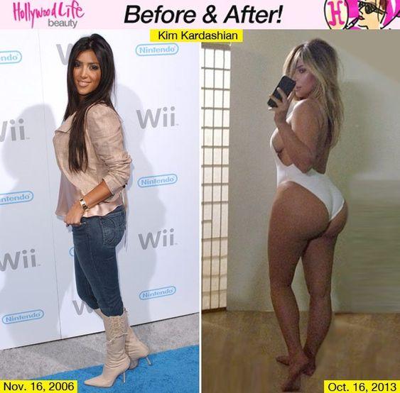 Butt after kardashian kim before